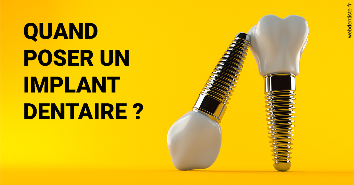 https://dr-atinault-philippe.chirurgiens-dentistes.fr/Les implants 2