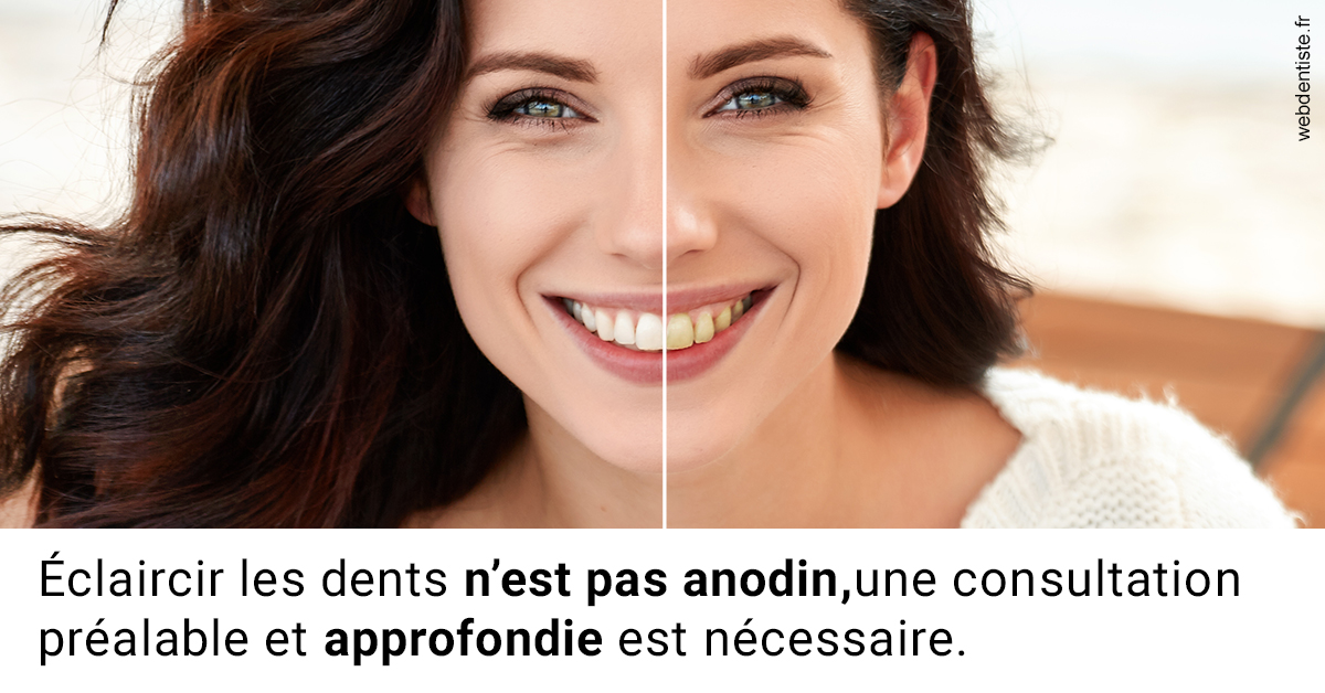 https://dr-atinault-philippe.chirurgiens-dentistes.fr/Le blanchiment 2